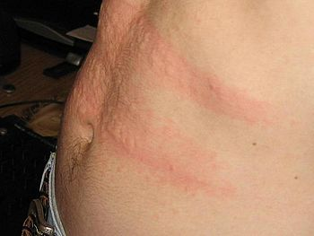 English: This is a picture of urticaria pigmen...
