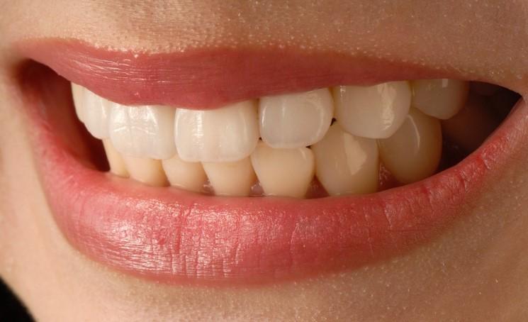 Zobne luske brez brušenja zob